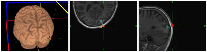 被験者のMRI画像上のホットスポット