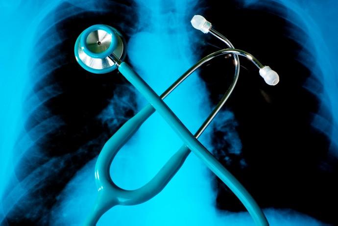 息だけで肺がん検査?安価で簡単な「LuCID」が早期発見を促す