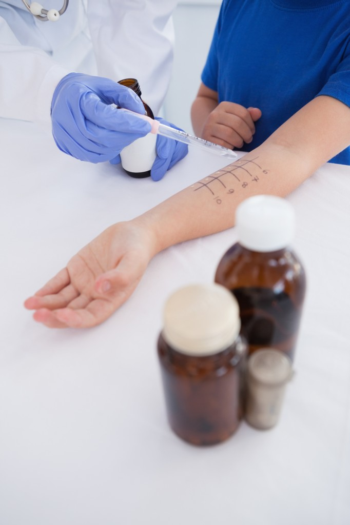 Doctor performing a skin prick test on a patient