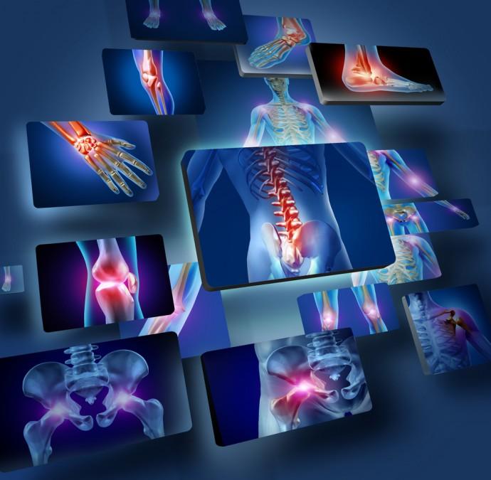 喘息発作の仕組みが解明!? 治療には骨粗鬆症の薬が効果を発揮