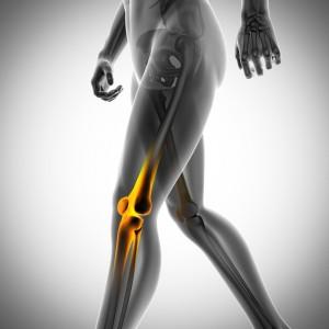 「骨粗鬆症の写真フリー」の画像検索結果