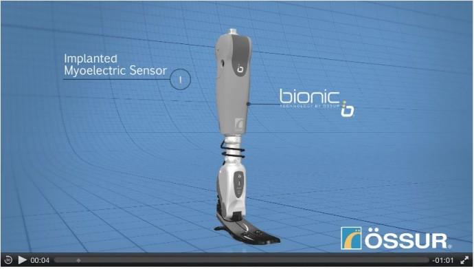 Bionic_Prosthetic02