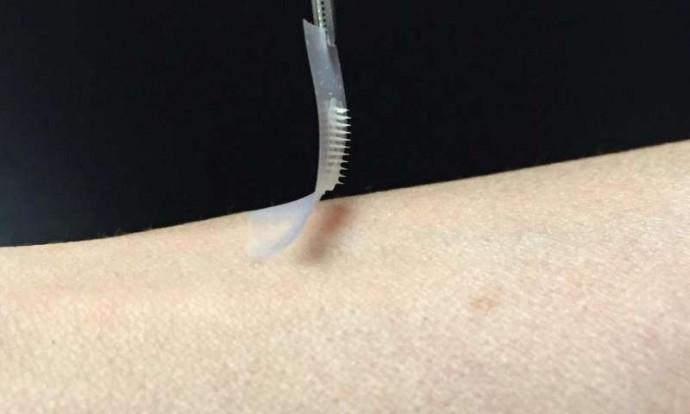 糖尿病患者に朗報!? 注射よりも痛くなくて持続性の高い「Smart Insulin Patch」