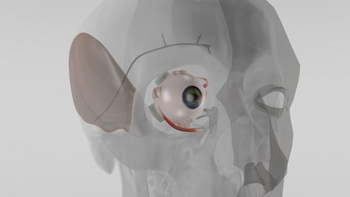 眼を傷つけない緑内障・眼球癆の対処法が実現か!? 違和感も感じない「埋め込み式マイクロポンプ」